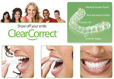 clearcorrect clear braces