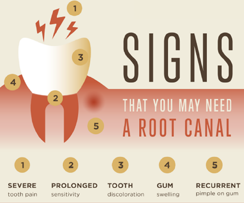 root-canal-symptoms