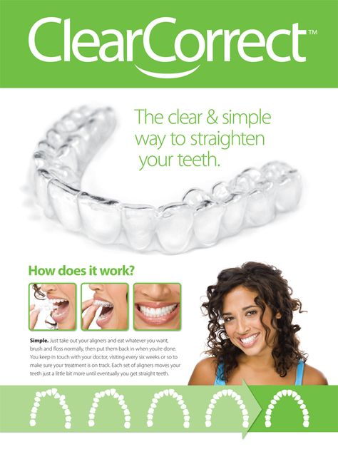 clearcorrect-invisible-braces