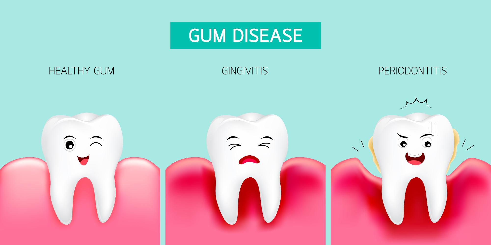 avoid-gum-disease