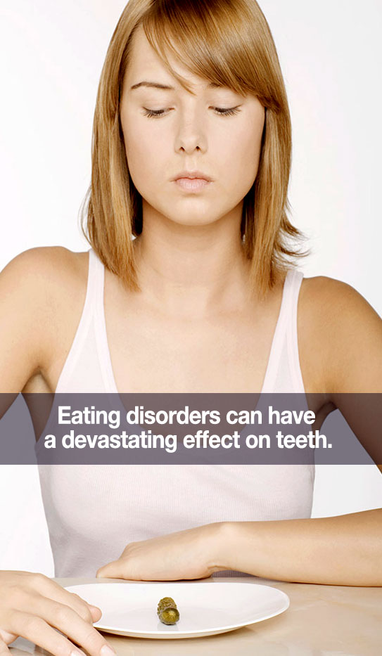 can-eating-disorders-hurt-my-teetht-my-teeth