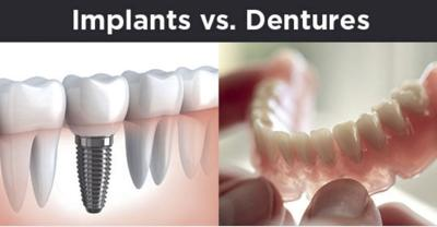 dentures-vs-dental-implants