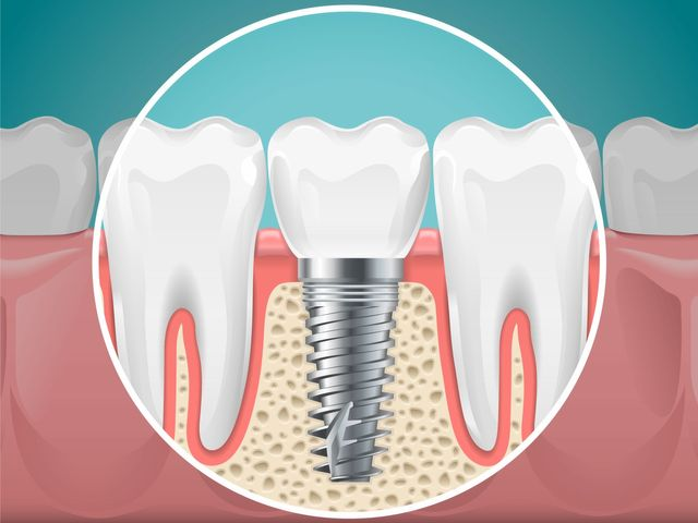 dental-implant-candidate
