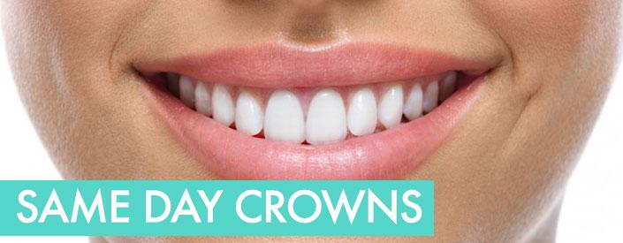 same-day-crowns